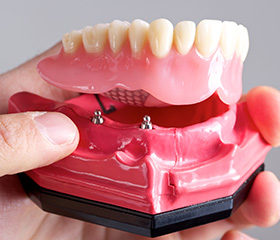 Model of All-on-4 denture