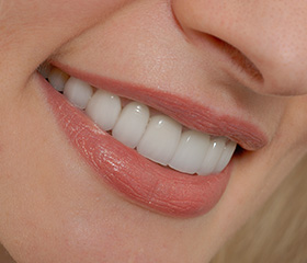 Closeup of health smile