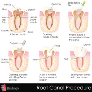 Root canals are necessary for maximum comfort.